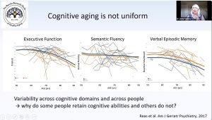 Women prone to cognitive decline